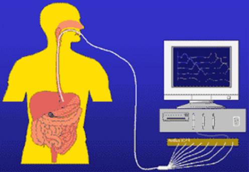 manometria esofágica curitiba exame